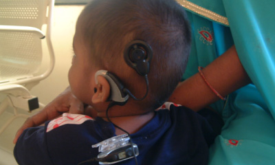 Performed 1st Cochlear implant in Thane dist.