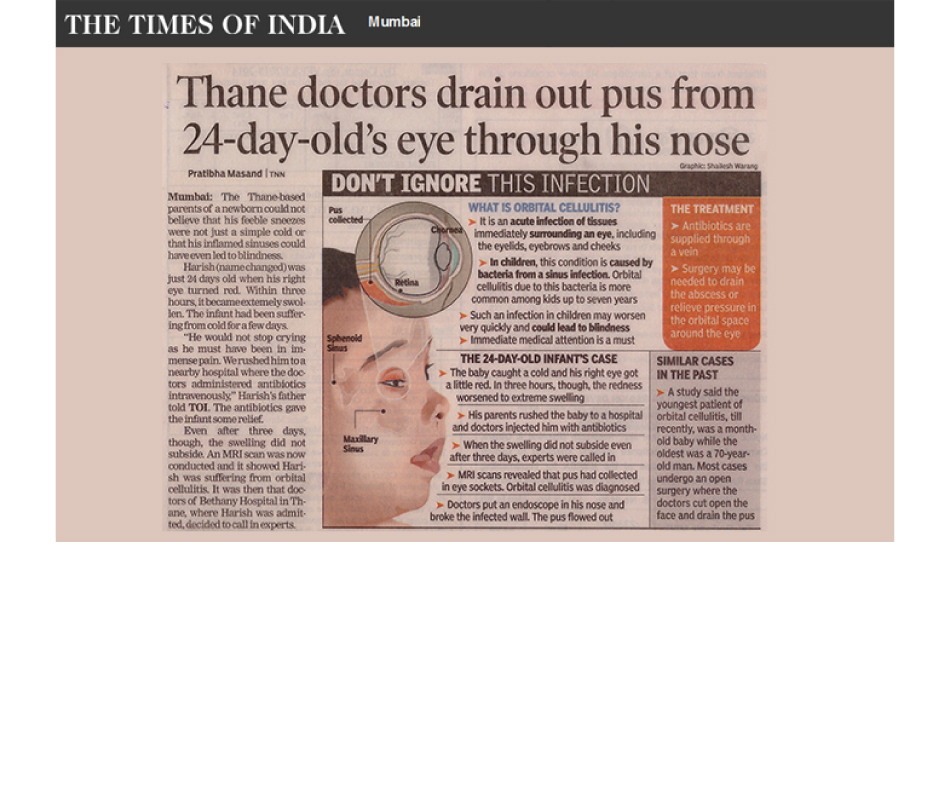 THANE DOCTOR DRAIN OUT PUS FROM 24 DAY OLD'S EYE THROUGH HIS NOSE